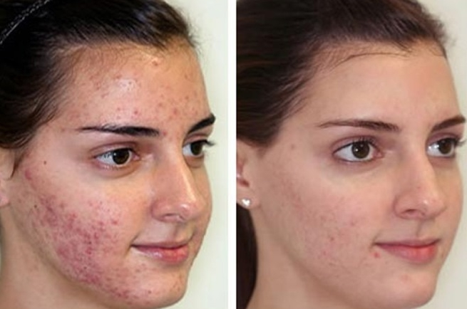 causes and effects of acne The causes of forehead acne and 10 simple remedies to prevent 3 years sensitive skin on your forehead and cause the acne listovativecom all rights.