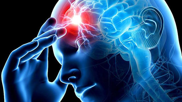 """Результат пошуку зображень за запитом """"Вот 4 признаки, что у человека сегодня может случиться инсульт!"""""""