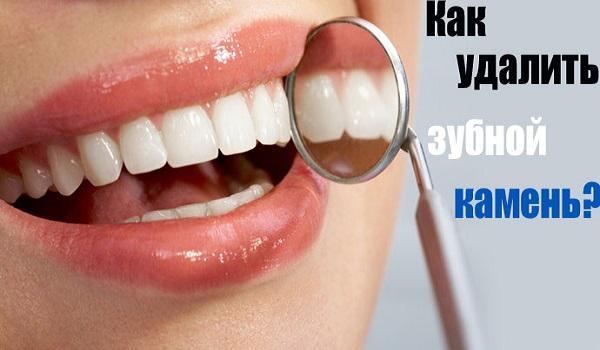 """Результат пошуку зображень за запитом """"10 простых способов легко удалить зубной камень без визита к зубному врачу!"""""""